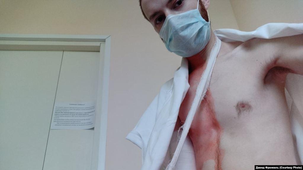Legal Case of the Week: Court upholds fine on David Frenkel, victim of police assault